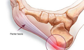 Treatment for Plantar Fasciitis at Bodyline Health Lower Plenty