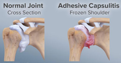 Treatment for Frozen Shoulder at Bodyline Health Lower Plenty